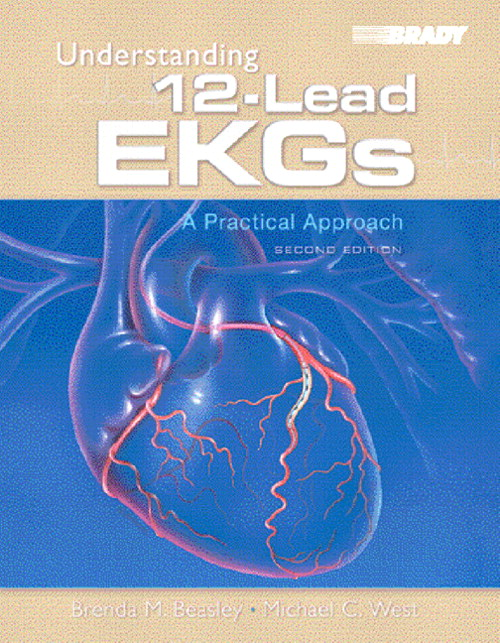 Understanding 12-Lead EKGs: A Practical Approach, 2nd Edition