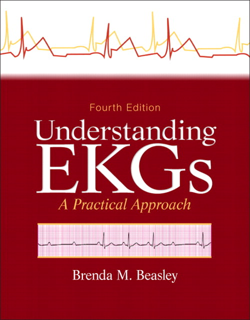 Understanding EKGs: A Practical Approach, 4th Edition